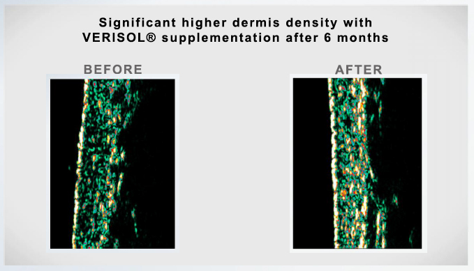 Science & Results | Collagen Lift Paris