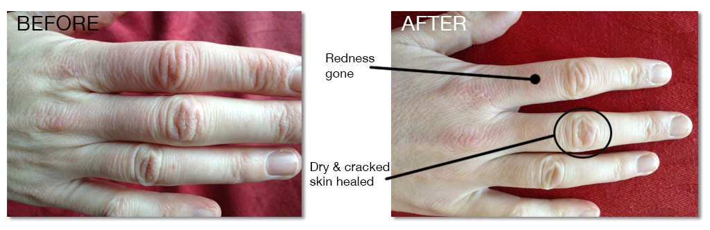 hands-b-and-a1 Collagen Lift Efficacy
