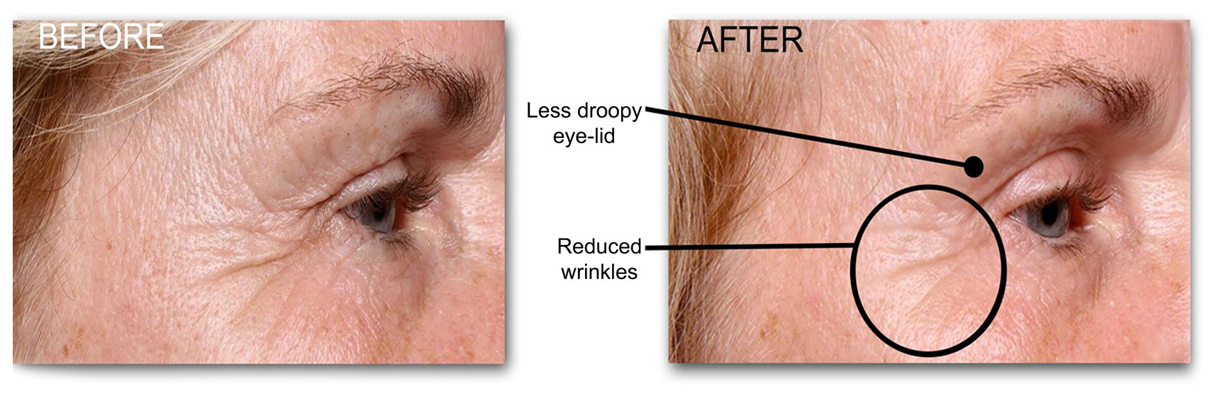 new-B-and-A-layout-eyes2 Collagen Lift Efficacy